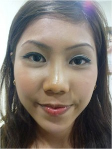 facial remodelling after photo