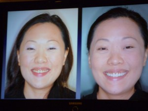 Patient before and after smile rejuvenation
