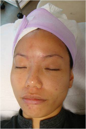 patient before Derma RF treatment