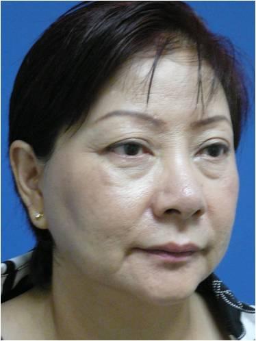 Ahp Weekend Laser Peel Laser Treatment And Anti Aging