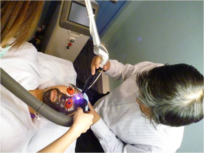 q-switched nd-yag laser treatment