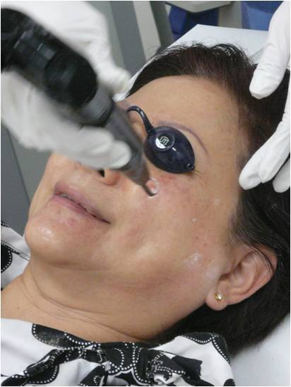 pigmentation laser treatment
