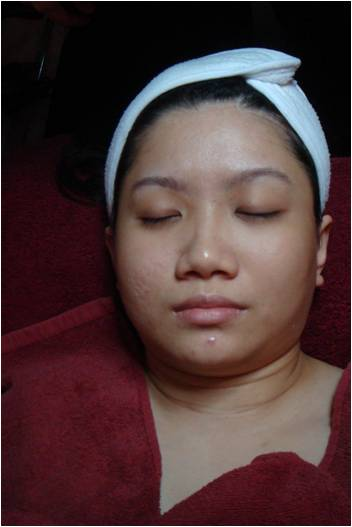 sharon before grandilite treatment