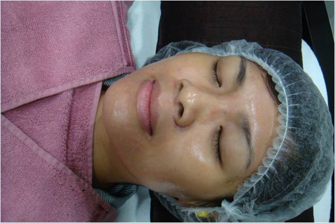 radiant skin after spectrapeel laser treatment