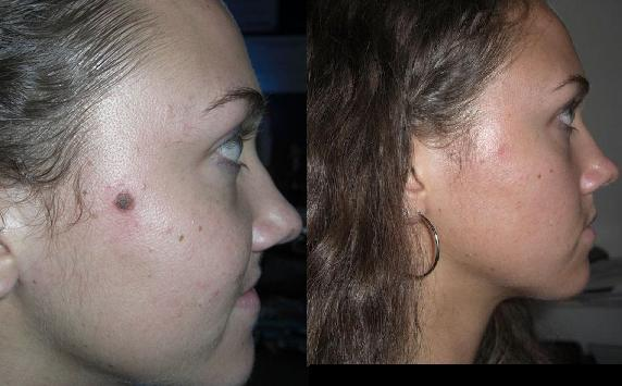 Mole Removal Laser Treatment And Anti Aging Reviews